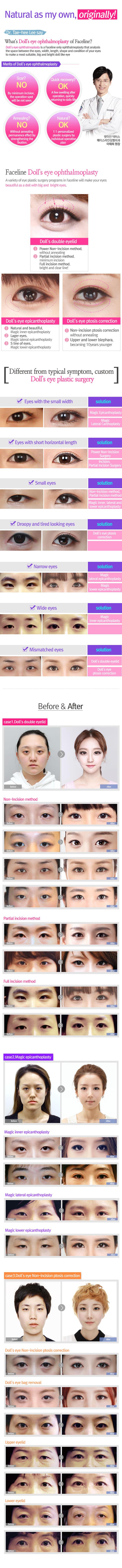 No 1 K-Beauty : FACELINE PLASTIC SURGERY